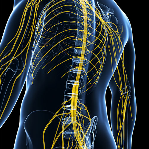 Decompression of Nerves - Florida Spine Institute